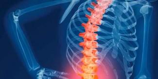 ہڈیوں کی بیماری آسٹیو پروسس بچپن میں شروع ہو سکتی ہے، طبی ماہرین