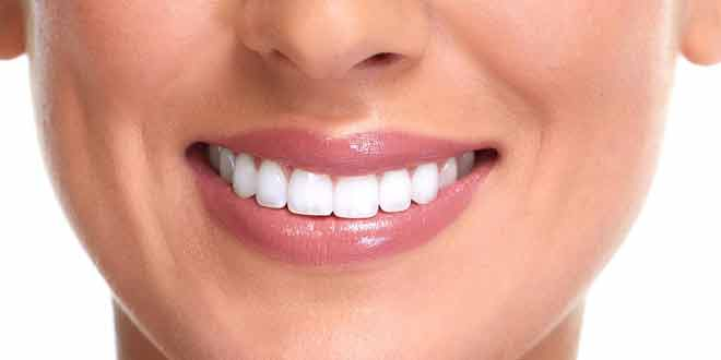 get beautiful teeth easily