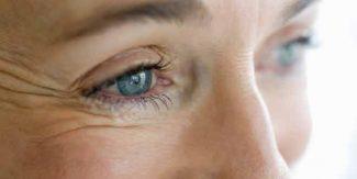 عمر بڑھنے کے ساتھ خواتین کو درپیش آنے والے آنکھوں کے مسائل