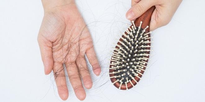 PCOS - Hair fall