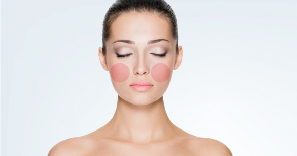 Your Pimples Speak Your Health4