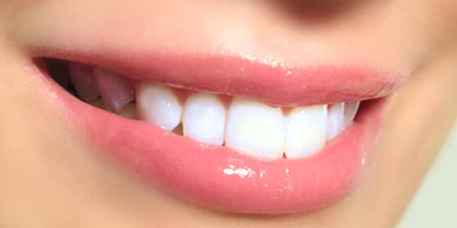 smile-white-and-bright