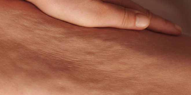 5-ways-to-get-rid-of-it-of-cellulite