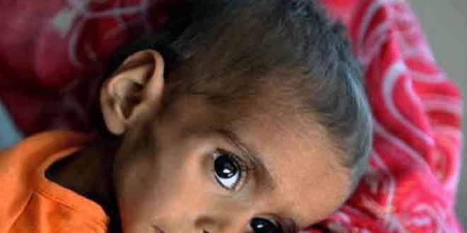 tharparker-food-shortage-kills-two-more-child-56-children-dead-in-22-days[1]