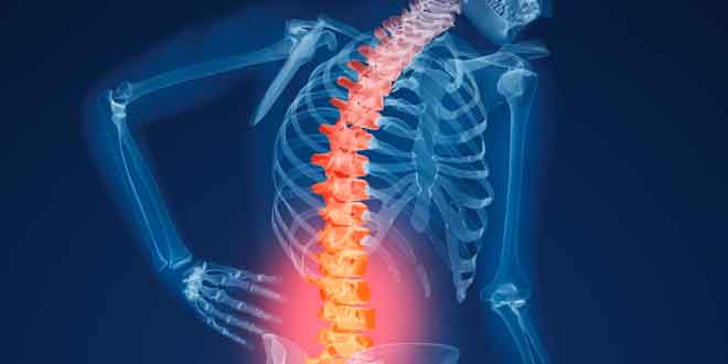 study-of-high-impact-exercise-on-osteoporosis-and-osteoarthritis[1]
