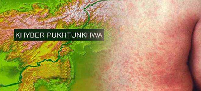rubella-virus-sweeps-through-khyber-pakhtunkhwa[1]