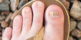 7 Home Remedies for Nail Infections