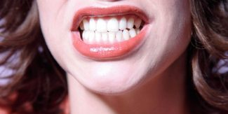 Blame your Genes for Bad Teeth