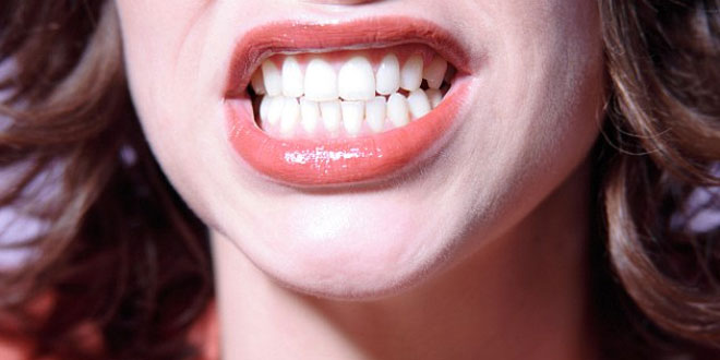 Blame-your-Genes-for-Bad-Teeth