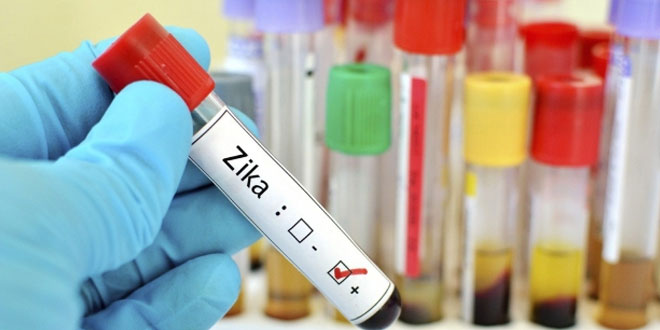 Low-cost-Zika-test-in-the-works