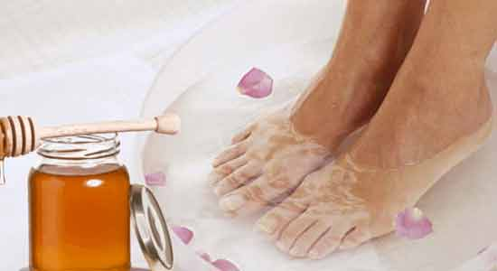 Honey Treat Dry and Cracked Heels at Home