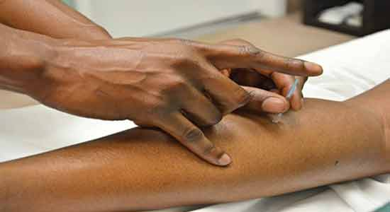 The Mysterious Origins And Early Stages And Early Stages Of Acupuncture