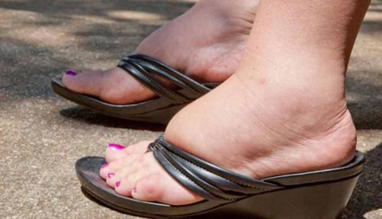 7 Reasons Why You Have Swollen Feet And Ankles