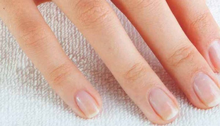Causes of Yellow Fingernails - HTV