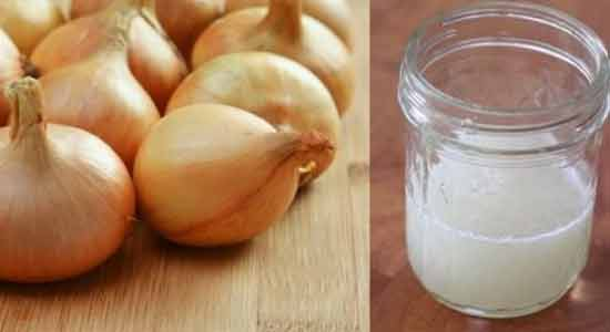 Extracted Onion Juice for Hair Loss