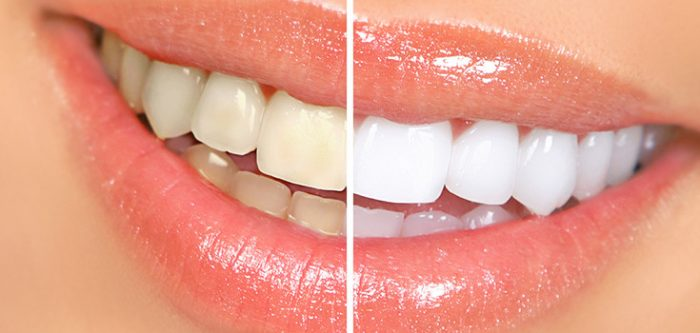 Get A Shiny Smile With Teeth Whitening Home Remedies Htv