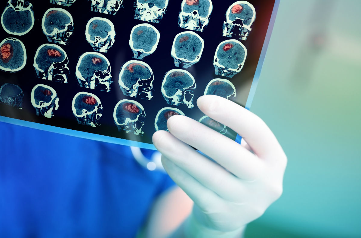 Watch Out For These Warning Signs of Brain Tumor
